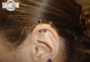 piercing_skinetik_Helix_00