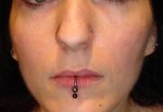 piercing_skinetik_labret_double_03