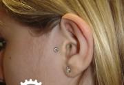 piercing_skinetik_micro_dermal21