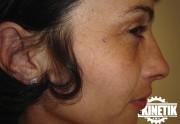 piercing_skinetik_micro_dermal27