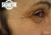 piercing_skinetik_micro_dermal29