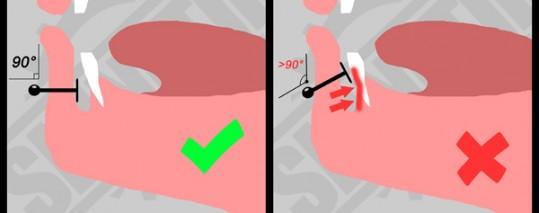 piercing et dechaussements dentaires skinetik piercing. Black Bedroom Furniture Sets. Home Design Ideas